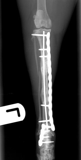 radiographic union of both fractures