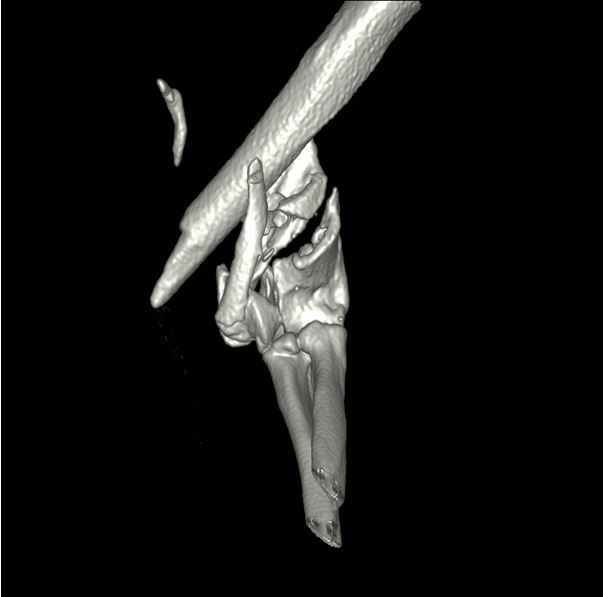 3D CT reconstruction of the left elbow prior to surgery