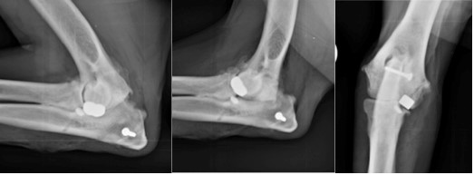 Canine unicompartmental elbow replacement