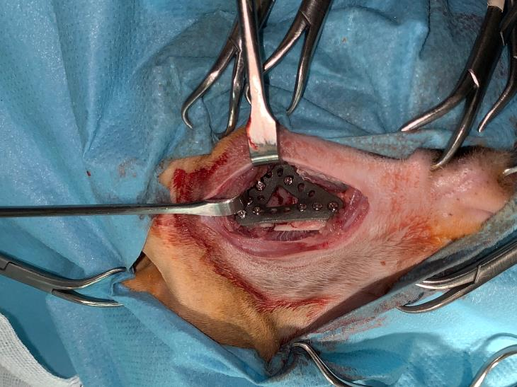 Surgical approach to application of 3d implant